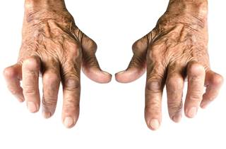 gnarled hands of inflammation